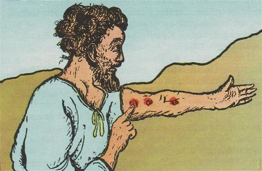 « Quand un homme aura sur la peau une tumeur, une inflammation ou une tache, qui soit une marque de lèpre, on l'amènera au prêtre Aaron ou à l'un des prêtres ses fils.